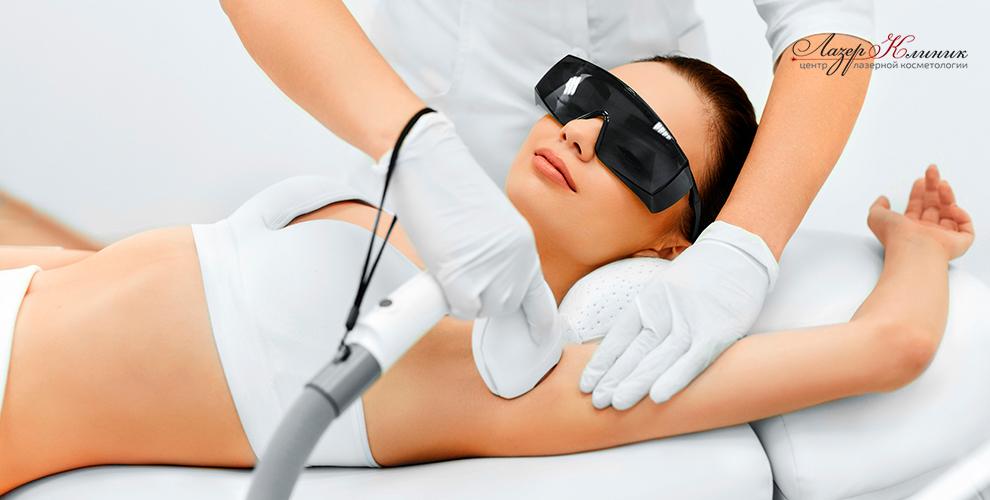 Лазерная эпиляция в центре лазерной косметологии «Лазер Клиник»