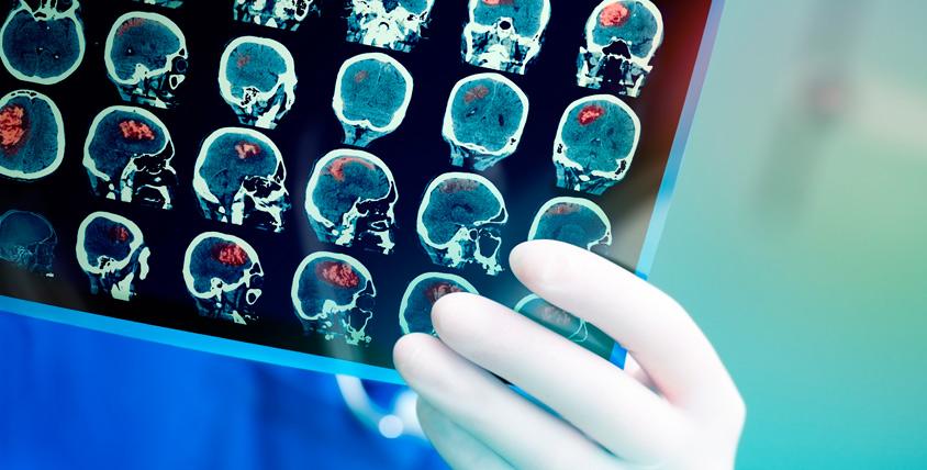 """МРТ отделов головы, суставов, органов и не только в медицинском центре """"Премиум клиник"""""""
