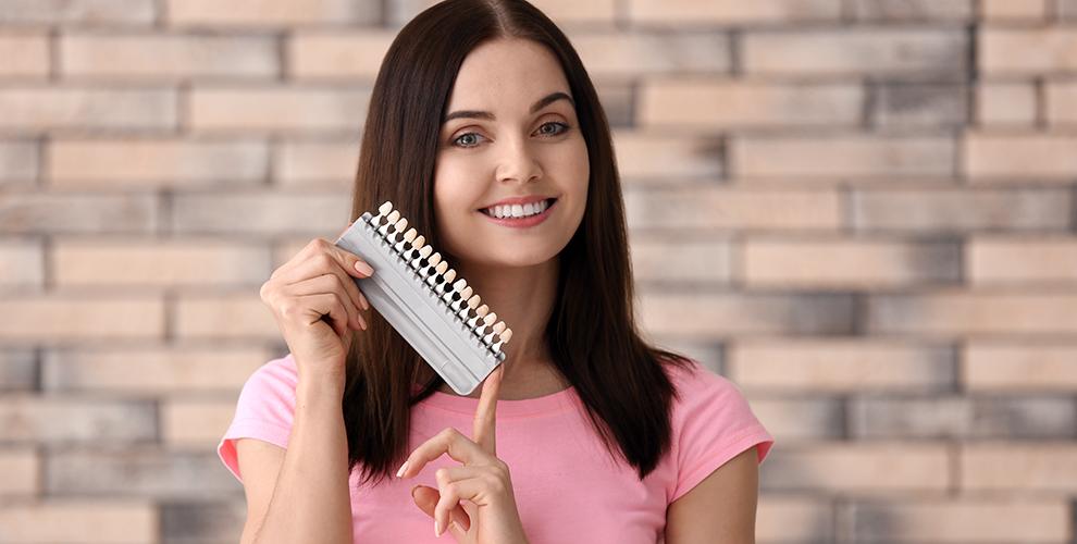 Отбеливание зубов в студии Perfect Smile