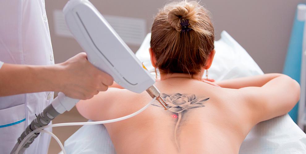 Лазерное удаление тату илиперманентного макияжа, фотолечение акне всалоне Redfox
