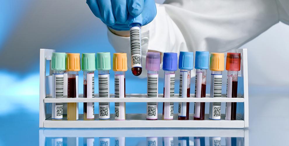 Анализы и внутривенного лазерного очищения крови в медицинском центре ESSENCE
