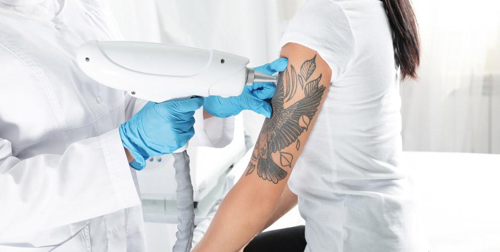 Лазерное удаление татуировки иперманентного макияжа встудии Владимира Ерушина