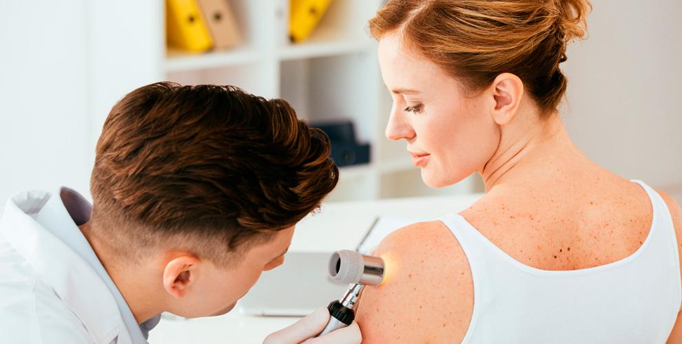 Прием врача-дерматолога, криомассаж, удаление новообразований в центре «Белый лебедь»
