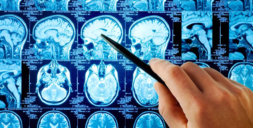 """МРТ головного мозга, суставов, позвоночника и не только в центре """"МРТ-Центр"""""""
