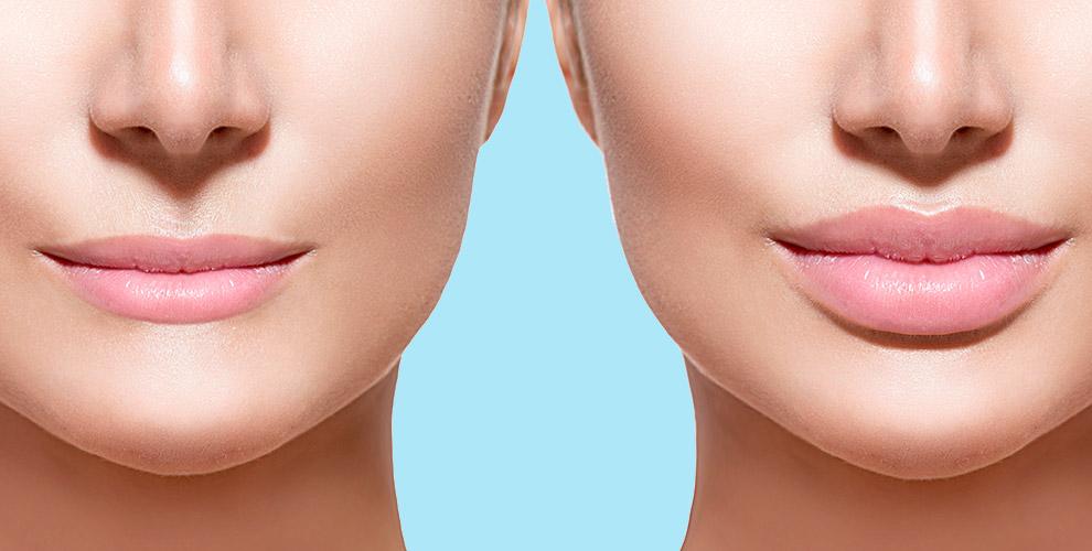 Инъекционная биоревитализация, увеличение объёма губ в центре доктора Вороновой