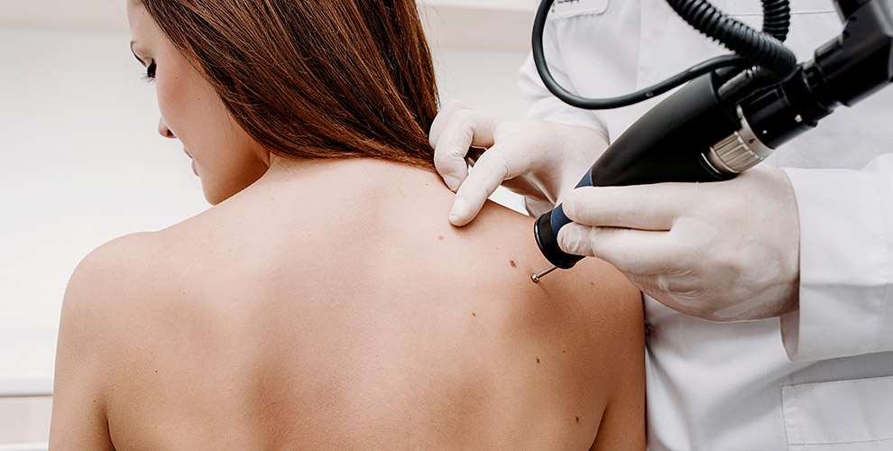 Дерматовенеролог, дерматоскопия и удаление новообразований в центре «Инфо-Медика»